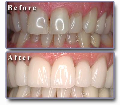 صورة تجميل الاسنان الاماميه بدون تقويم , كيف تقويم الاسنان