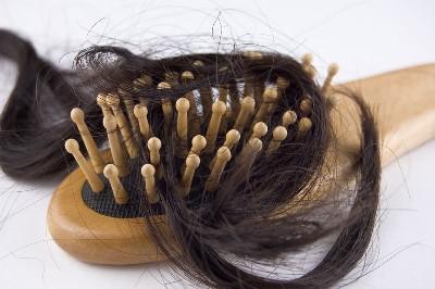 صورة تفسير حلم سقوط الشعر بكثره