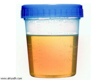 صورة لون البول الابيض , مظاهر التهابات الاماكن الحساسة