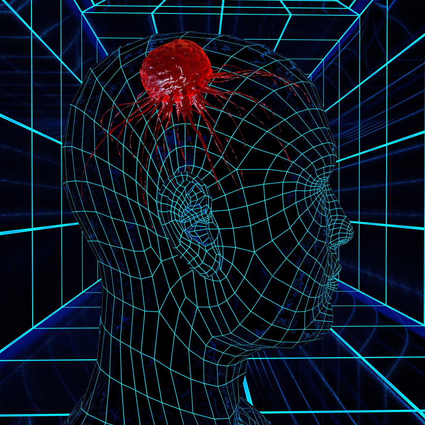 معلومات عن الورم الدماغى الخبيث