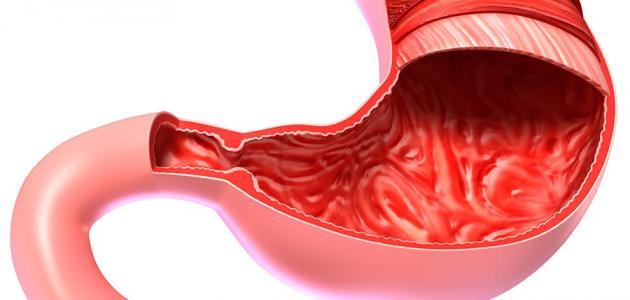 صورة التهاب في القولون , التقرحات والتوتر علامات واضحة لاصابتك القولون العصبي