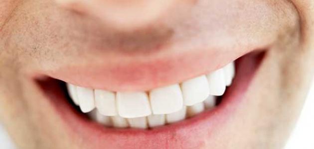 صورة كيفية تركيب الاسنان , ركبي اسنانك من غير ما تحسي