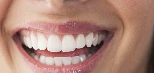 صورة امراض اللثة , امراض في الفم