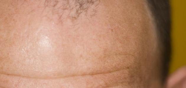 علاج الصلع بالثوم