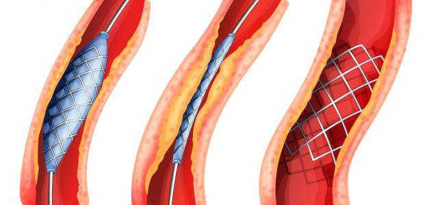 صورة علاج الورم الليفي بالقسط الهندي , كيف السيطرة على حجم الورم الليفي باستخدام القسط الهندي