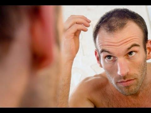 صورة خلطات للشعر الخفيف من الامام , معظم مشاكل الشعر وعلاجها الفعال f4279f5fcda388b29961387e423ab82f