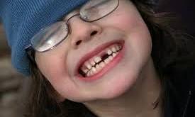 صورة تفسير حلم الاسنان تسقط