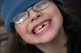 صور تفسير حلم الاسنان تسقط