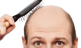 صور تفسير حلم تساقط الشعر