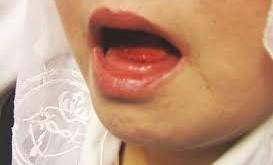 صورة تفسير حلم خروج الدم من الفم