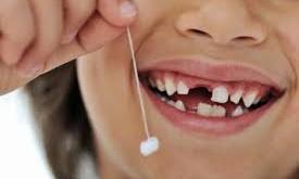 صورة تفسير حلم تكسر الاسنان , تاويل ابن سيرين في ذلك