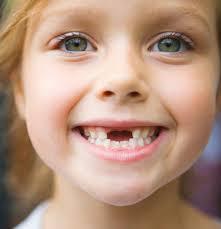 صورة تفسير حلم كسر الاسنان