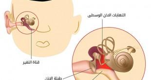 صورة التهاب الاذن الوسطى , بالمتابعة لن تتعرض للالتهاب الاذن الداخلية الوسطي