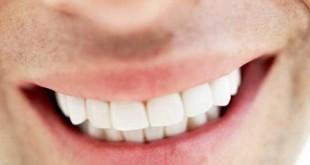صور كيفية تركيب الاسنان , ركبي اسنانك من غير ما تحسي