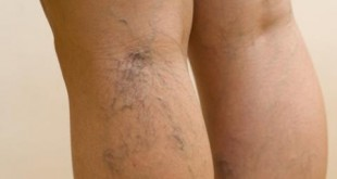 صورة دوالي الساقين , وجع الساق لا يحتمل