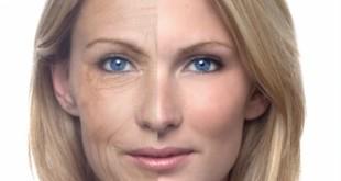 صورة ازالة تجاعيد الوجه , تجاعيد في العشرين