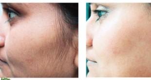 صورة الشعر الزائد في الوجه , مشكلة تؤرق الفتيات