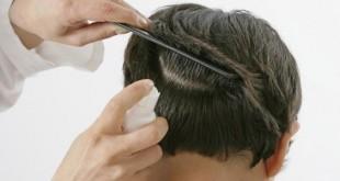 صورة ماهو القمل , كيف اتخلص من ظهور القمل في شعري