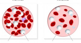 صورة اسباب فقر الدم , ما المسببات للاصابة بالانيميا لدي الكثير