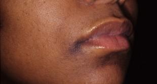 صورة التخلص من السواد حول الفم , هل نهائيا لسواد حولين الانف و الفم