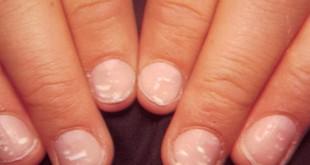 صورة ما هي اعراض الانيميا , علاج الامراض المنشرة بين النساء