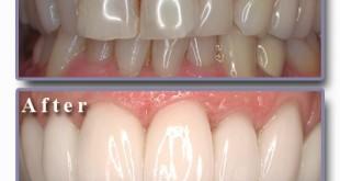 تجميل الاسنان الاماميه بدون تقويم , كيف تقويم الاسنان