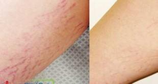 صور علاج تشقق الفخذين , اسباب و علاج تمدد الجلد في منطقة الفخدين