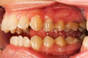 صورة اسباب التهاب اللثة , امراض تؤدي الى فقدان الاسنان