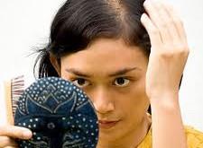صورة كيف تعالج تساقط الشعر من الامام , اختلال الهرمونات احد عوامل فراغ الشعر من بداية الراس ولكن الحل بسيط