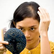 كيف تعالج تساقط الشعر من الامام , اختلال الهرمونات احد عوامل فراغ الشعر من بداية الراس ولكن الحل بسيط