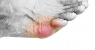 صورة اسباب تورم اصابع القدمين في الشتاء مع سخونتها , ما السبب في فصل الشتاء تزداد الاصابع في القدمين تورما مع الاحتكاك الدافئ بينهم
