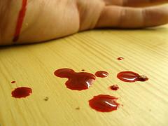 يد فيها دم , تفسير احلام الدم تفزع القلب